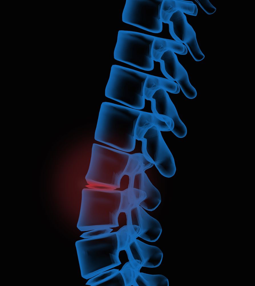 back-pain-after-car-accident-puyallup-wa