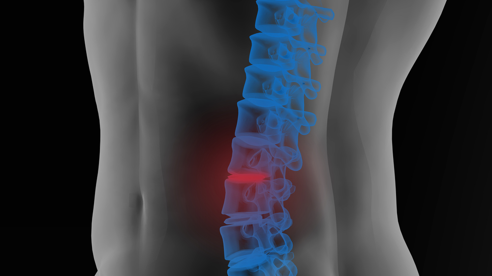 back-pain-after-car-accident-south-hill-wa
